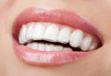 mascherina invisibile - apparecchio dentale
