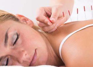 L'agopuntura aiuta il fisico e la mente